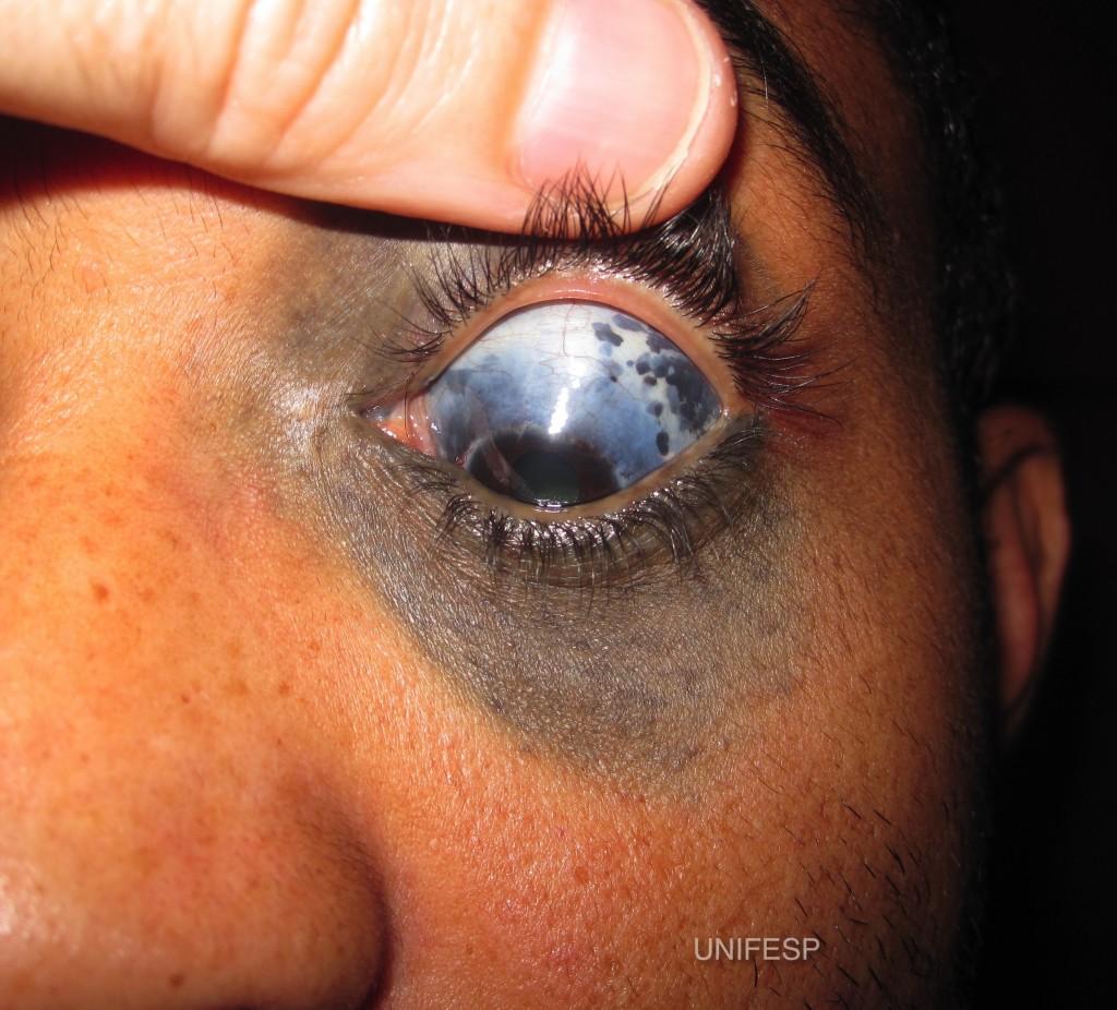 Foto de Melanocitose Oculo Dermal