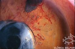 Foto de olho com Glaucoma