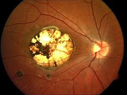 Foto de Toxoplasmose Ocular